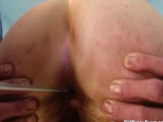 image Cervix breaker bbc 2